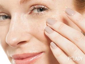黄褐斑与晒斑的区别方法 教你如何防护这两种斑