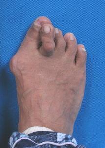 大脚骨矫正 拇外翻 整容手术过程图片 整形前后效果图 东方虹整形对比...