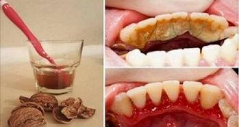 如何不去洗牙就清掉牙结石
