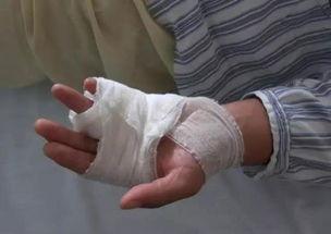 ...,缝了针,右脚脚踝韧带拉伤,打着石膏,需要恢复一段时间.-猖狂...