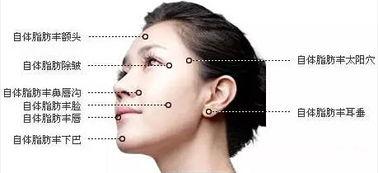 台州自体脂肪面部填充的适应症有哪些呢