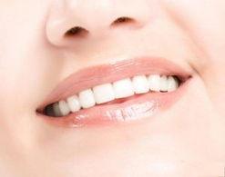 牙齿畸形要趁早进行矫正
