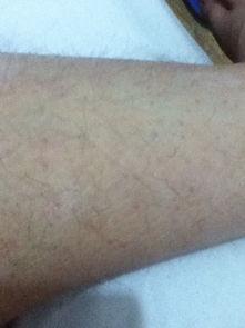 ...我汗毛孔上这些小红疙瘩是怎么回事腿上