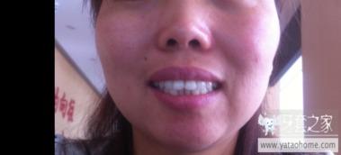 35岁高龄牙套姐整牙记录