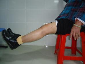畸骨-全膝关节置换手术治愈骨关节畸形