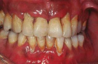 真刷牙可以减少牙结石的堆积,养... 在德伦口腔洗牙中心配有瑞士EMS...