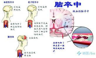其中还含有中药冰片,具有恢复神经系统功能的作用,可以治疗脑   中...