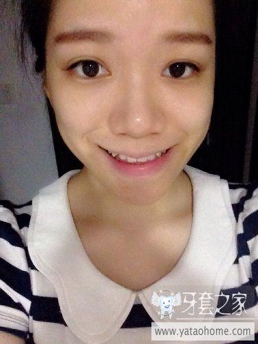 ...咨询一下有没有必要做正颌手术 偏颌 中国最大的牙齿矫正论坛及精...
