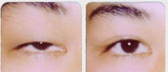 美莱眼睑下垂矫正不好