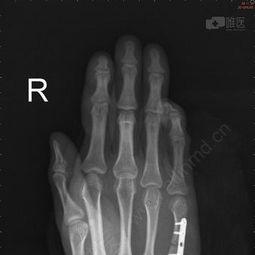 右手第五掌骨骨折