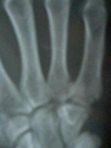 手掌骨骨折需要做手术吗