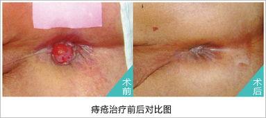 女性痔疮手术图片