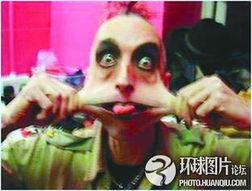 异世界skilltaker无修-2007年1月,英国诺里奇市37岁男子盖里·图纳患有一种罕见的基因疾...