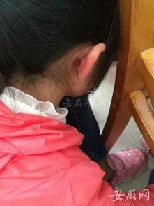 安徽小学女生做题出错被体罚 脸有掌痕耳根撕裂