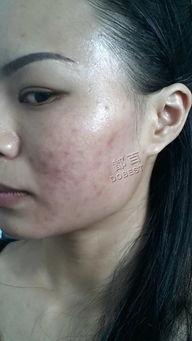 晒斑-光滑细腻,粉嫩动人桃花肌,皮肤好就是自信