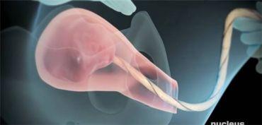 剪断后且胎盘还没有剥离母体时,... 只需1-2分钟即可.胎盘娩出时,...